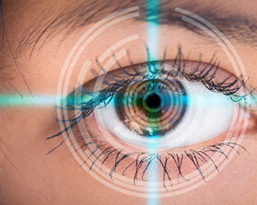 https://syndikakis.gr/wp-content/uploads/2018/01/image-of-laser-eye-surgery-435536-500x400.jpg